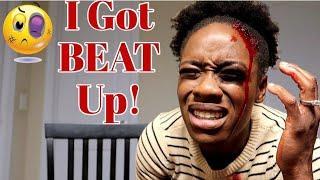 I Got Beat Up PRANK (On Husband)